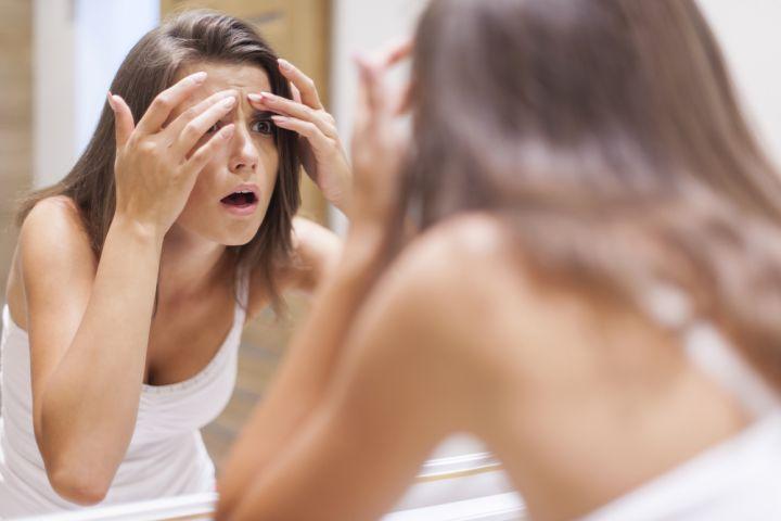 Skinoren : un bon traitement anti-acnéique