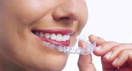 Gouttière dentaire: la solution miracle pour régler vos problèmes de dents