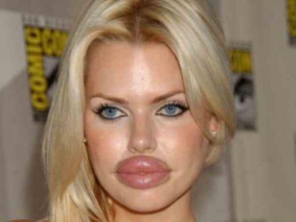 trop de botox