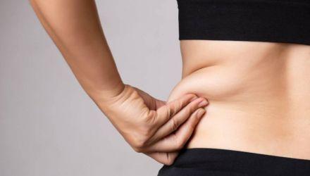 Les solutions innovantes pour lutter contre la cellulite